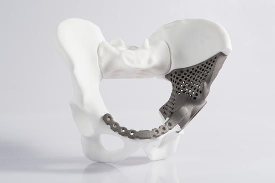 Biokompatibles Implantat aus Titan (Ti6Al4V)