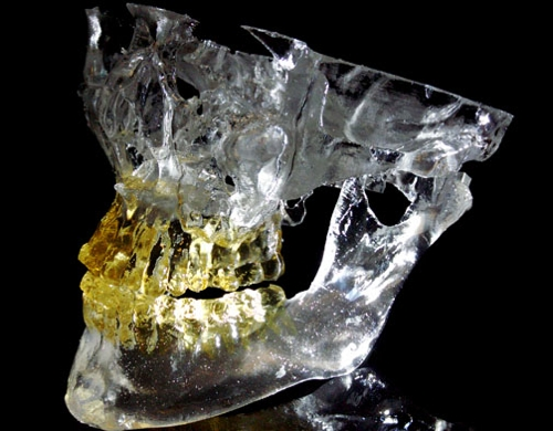 Mandibula and Midface made of Accura ClearVue 3D Systems